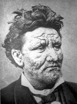 Norwegian leprosy patient