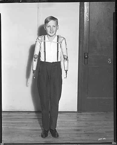 Black and white photograph of a boy with artificial arms, 1941.