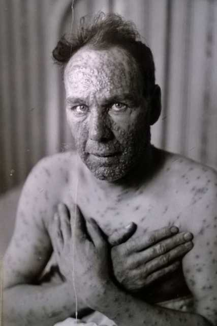 Black and white photograph of an adult male smallpox victim taken c.1924.