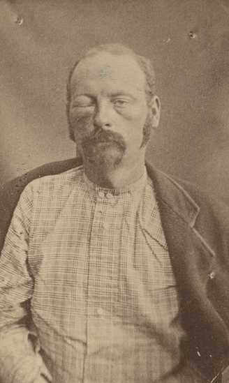 Black and white photograph of Cole Younger after being captured, September 1876. Younger's face is swollen from a bullet wound he received during the shoot out outside Madelia. Photographed by Jacoby's Art Gallery.