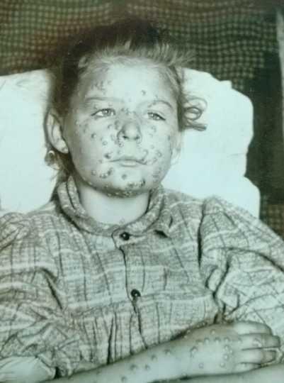 Black and white photograph of a juvenile female smallpox victim taken c.1900.