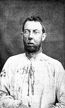 Black and white photograph of Jim Younger after being captured, September 1876. His face and shirt are bloody from a bullet wound in his jaw he received during the shoot out outside Madelia.  Photographed by Jacoby's Art Gallery.